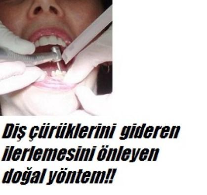 Diş çürüklerini gideren doğal tedavi