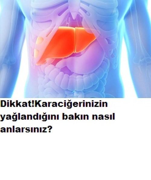Karaciğer yağlandığını nasıl anlarsın