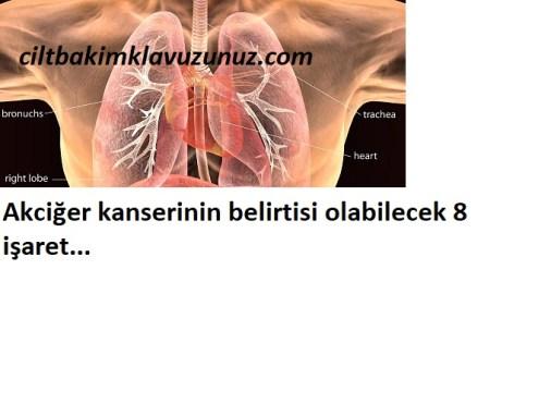Akciğer kanserinin belirtisi olabilecek 8 işaret