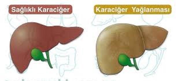 Karaciğer yağlanmasını gideren bitkisel yöntem