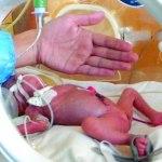 Bebè di 680 g