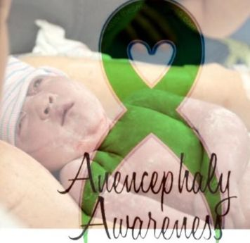 anencephaly awareness logo