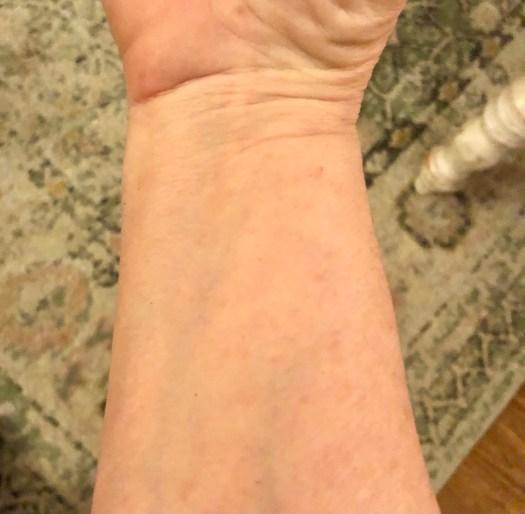 Healed skin.