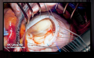 MediAVentures First 4K Live Cardiac Surgery