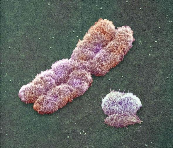 Cromosoma X y un Y