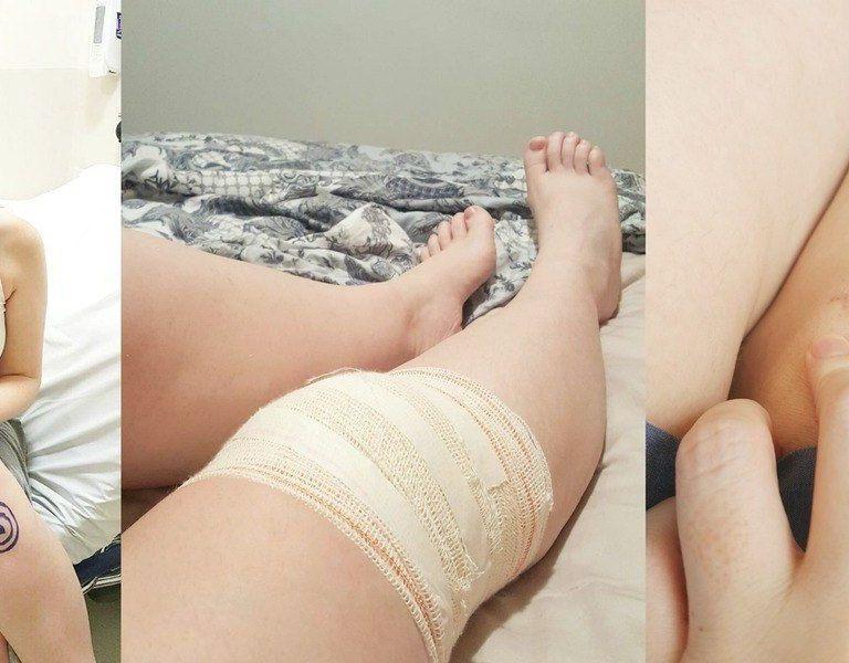 Cirurgia do joelho: como foi a operação do menisco e o primeiro mês de recuperação