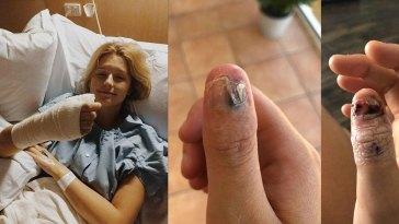 Nail-biting-cause-Cancer