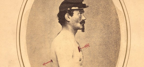 Civil War era photograph of a wounded soldier with a hand drawn arrow indicating the path of the bullet.