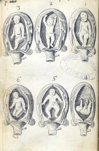 six engravings showing various positions of babies in the womb.
