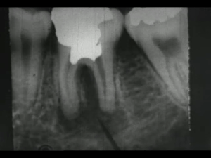A dental x-ray of molars.