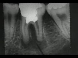 A dental x-ray of molars.