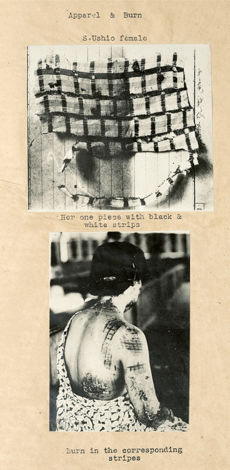 Two photographs from the report show a woman with burn patterns matching the pattern on her clothing.