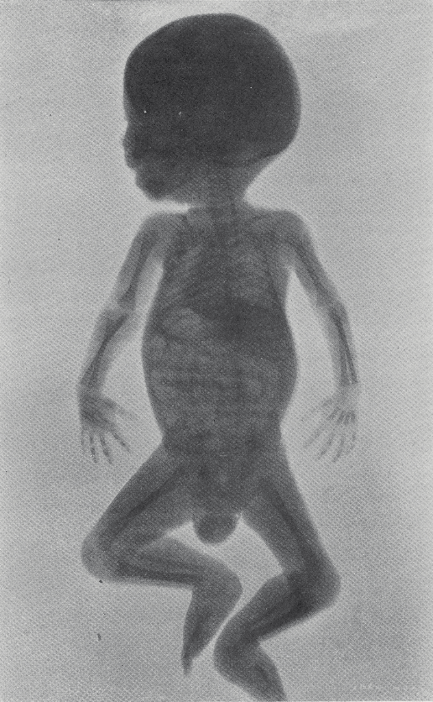 Full body x-ray of an infant.