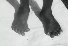 Film showing the disfiguring effect of leprosy on the feet of a patient.