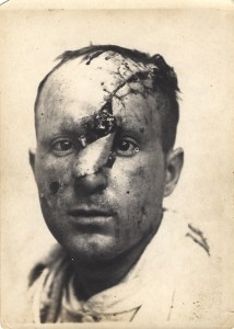 A photograph of a man with severe facial injuries in the midst of treatment with plastic surgery and skin grafting.