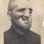 A photograph of a man with scars and uneven features resulting from serious wounds.
