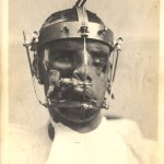A photograph of a man with severe facial injuries in the midst of treatment involving headgear with pins.