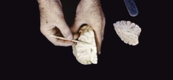 A still of a close-up of hands pointing out features of a dissected brain.