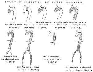 A series of line drawings indicating various extents of the area of disection on the aorta and the percentage of each in a pool of 287 cases..