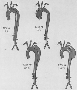 sketches of 4 various types of aortic dissections with percentage of cases.