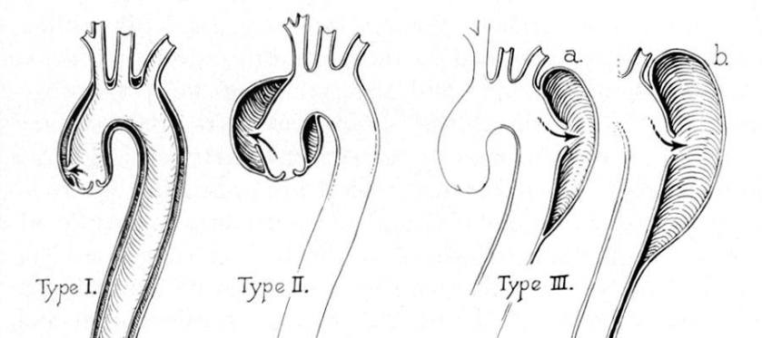 sketches of 3 various types of aortic dissections with percentage of cases.