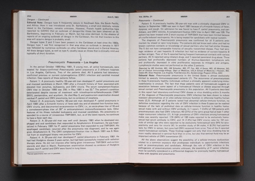 Book open to the printed text of the first official report of AIDS in the U.S.