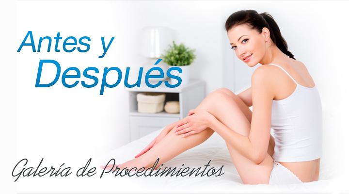 fotos antes y después de resultados de cirugía plástica cosmética por el Dr. Josué Lara Ontiveros realizados en Cirugía Plástica Monterrey.