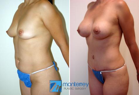 Resultados de Cirugía para Madres por el Dr. Josue Lara Ontiveros.