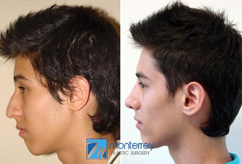cirugía plástica de rinoplastia realizada por el Dr. Josué Lara Ontiveros.