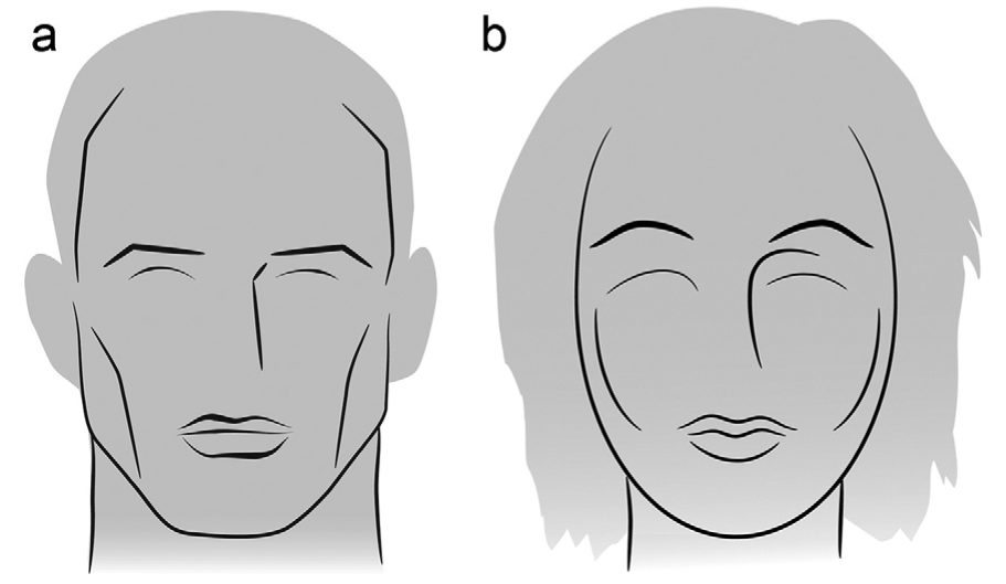 Cirugía de feminización facial_facial feminization surgery