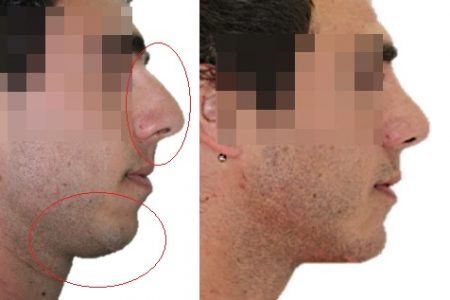 Mentoplastia + Rinoplastia antes y después