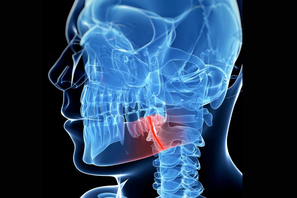 Traumatología facial y reconstrucción de secuelas en la cara