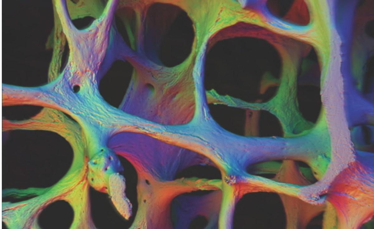 El problema de los fármacos utilizados contra la osteoporosis: la necrosis ósea por BIFOSFONATOS.