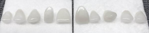 carillas terminadas tras 3 cocciones diferentes y retirada de la cofia de platino.