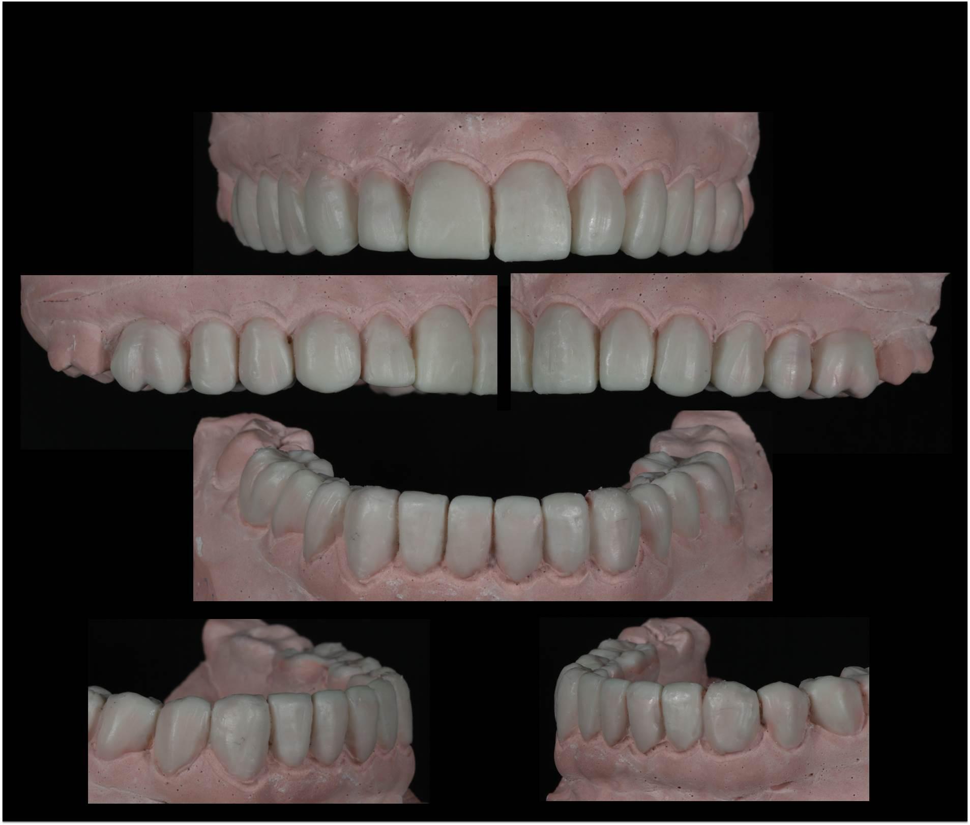 Mock Up o modelo de simulación en Estética Dental