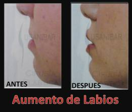Aumento de Labios con Celulas Madre