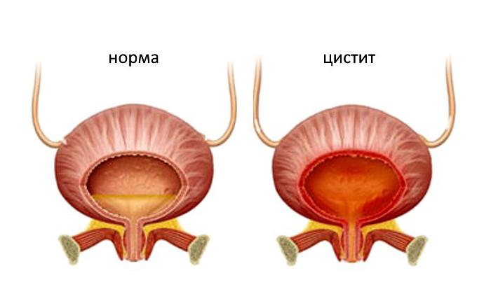 Болит мочевой пузырь каковы причины дискомфорта симптомы лечение и профилактика