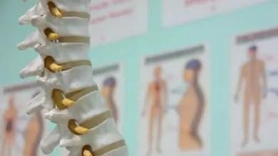 Photo of Científicos utilizan la AI para el diagnosticar lesiones de médula espinal