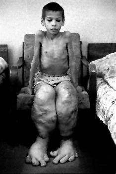 chernobyl-child-swollen-legs-feet