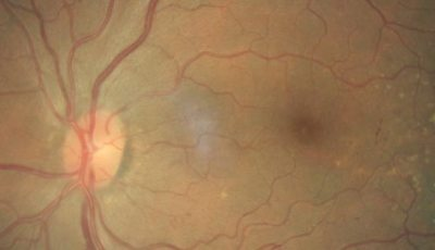 Diabetic Retinopathy & Primary Glaucoma Screening for Underserved Populations