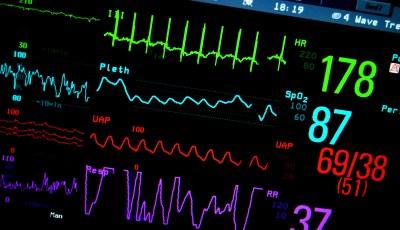 Non-invasive Multi-sensor to Predict Worsening Heart Failure
