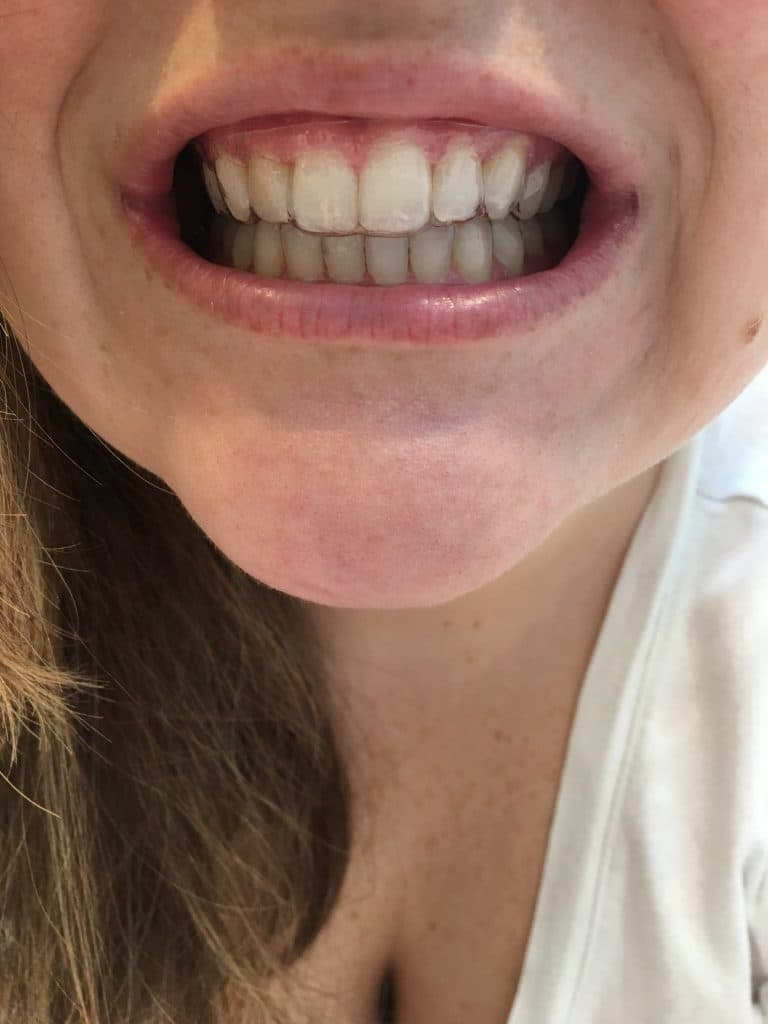 How Should Aligners Fit : should, aligners, Smile, Direct, Invisible, Aligner, Review, Citrus, Delicious