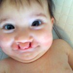 """Daughter's Cleft Lip Makes Dad Question What is """"Normal"""""""