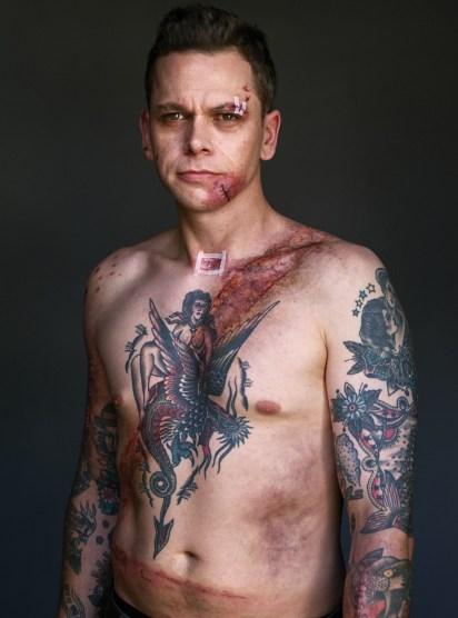 Belted Survivors - moški, preživeli zaradi varnostnega pasu