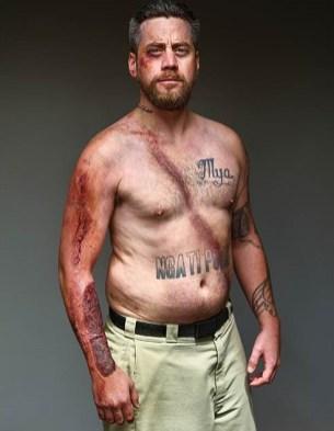 MBelted Survivors - moški, preživeli zaradi varnostnega pasu