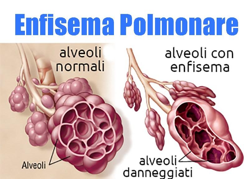 enfisema-polmonare-e-bpco:-sintomi-e-complicanze.