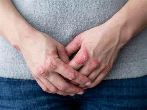 caporali:-artrite-psoriasica-spesso-curata-per-la-vita