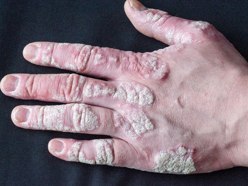 artrite-psoriasica:-patologia-da-curare-a-vita,-necessario-rapporto-stretto-con-il-medico.
