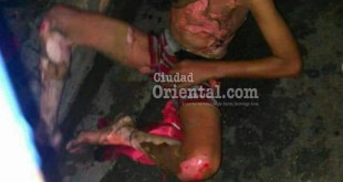 Una de las últimas fotos que le hicieron al adolescente tras ser quemado vivo por dos mujeres.