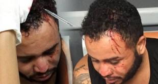 Edwin Reyes Caraballo es curado de la herida que le provocaron en la acbeza empleados del ASDE con la culata de una escopeta.